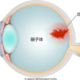 【画像付き】眼底出血とは?見え方・原因・症状まとめ